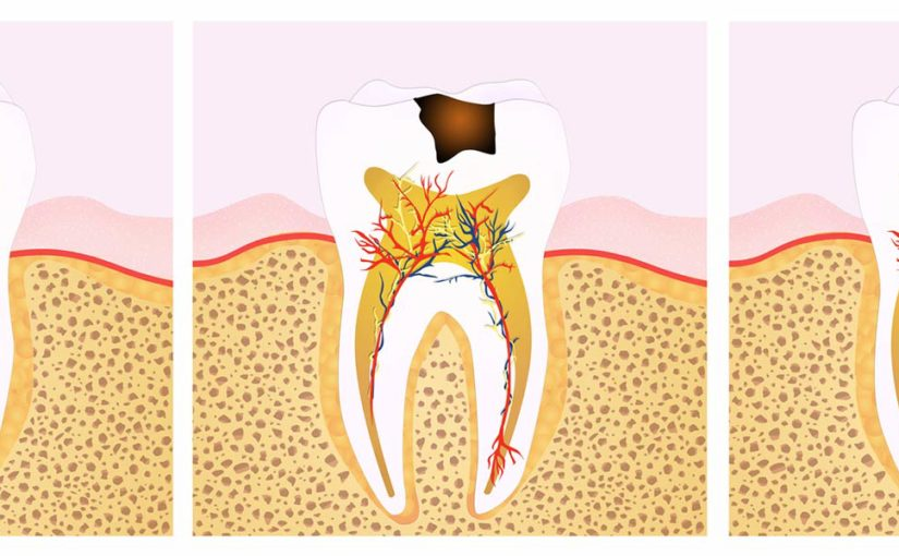 Debunk the Top 5 Myths Around Root Canal Treatment