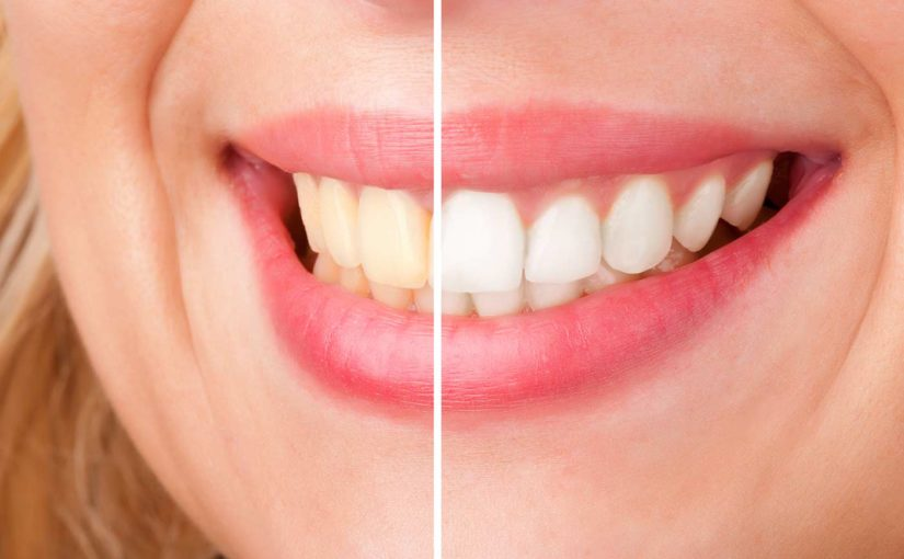 The Best Way to Whiten Teeth & Reduce Staining